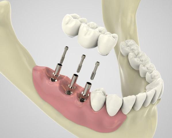 Implantatgetragener Zahnersatz Bild 1