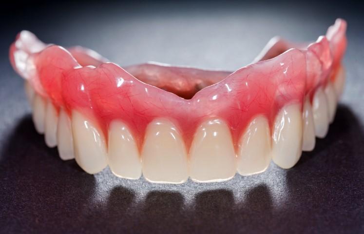 Implantatgetragener Zahnersatz Bild 2