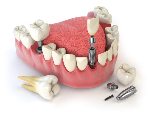 Implantatgetragener Zahnersatz Bild 5