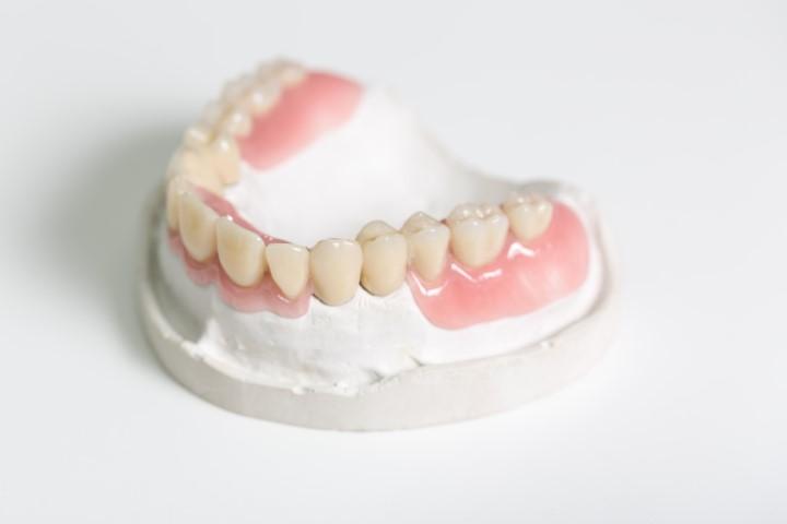 Implantatgetragener Zahnersatz Bild 6
