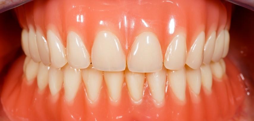 Implantatgetragener Zahnersatz Bild 7