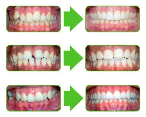 Inline / Clear Correct Schienen Therapie Bild 6